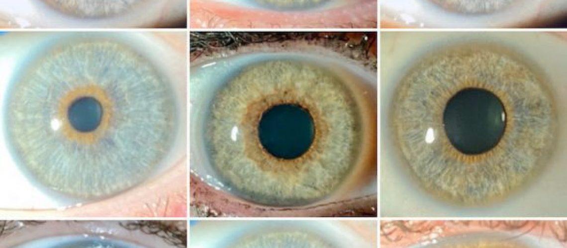 neweyeslaser-cambio-color-ojos-588pxx310px